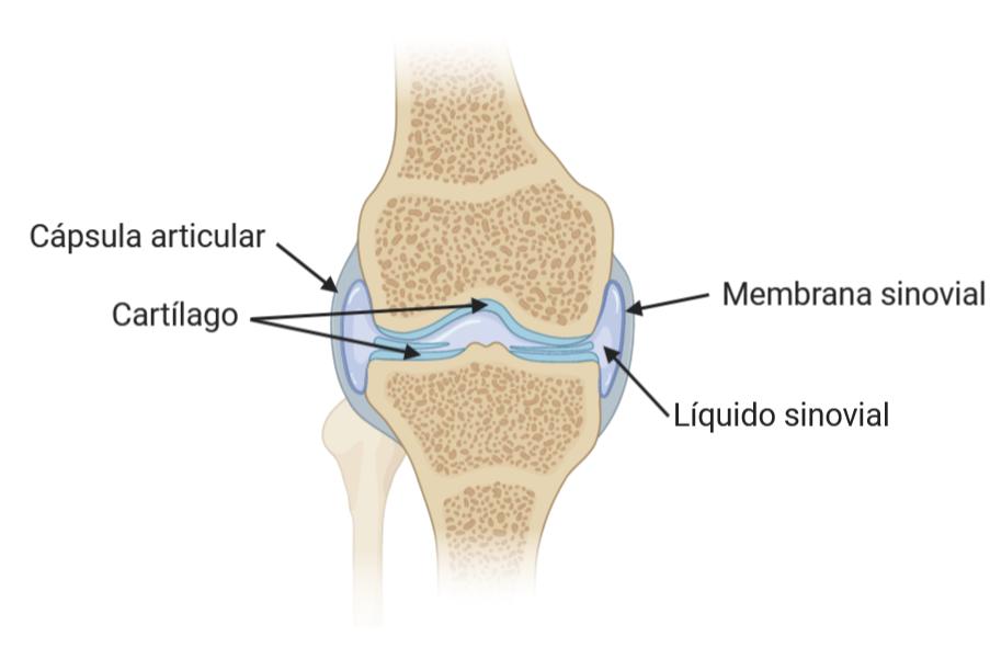 Partes de la articulación. La artritis reumatoide comienza con la inflamación de la membrana sinovial que recubre la articulación.