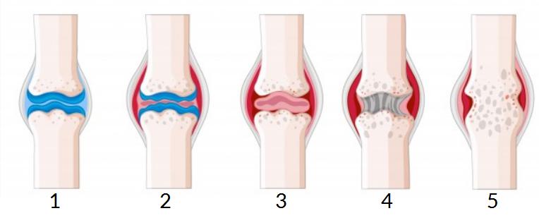 Proceso en el que se describe la evolución de la enfermedad articular artritis reumatoide.