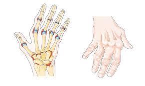 Esquema que presenta una mano afectada por artritis reumatoide.