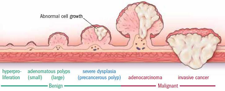 Diferencia entre tumor benigno y tumor maligno o cáncer.